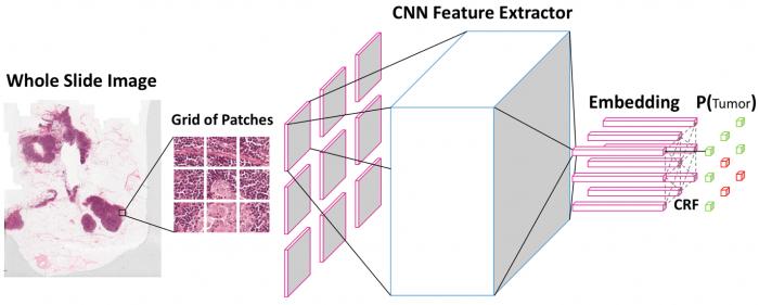 4379f2a03835e5e 百度发布肿瘤识别AI算法 准确率大幅提高 百度